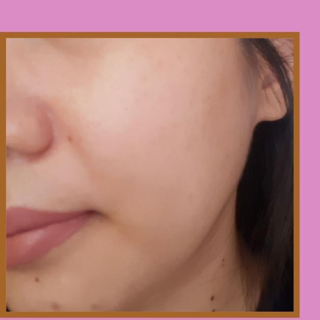 hasil pemakaian acne serum scarlett